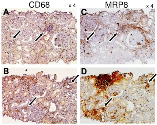Localization of CD68 and MRP8 protein expression in serial sections of diabetic nephropathy cases.Expression of CD68 (A, B) and MRP8 expression (C, D) in paired renal specimens (A and C, or B and D). Arrows indicate colocalization of CD68 and MRP8 signals.