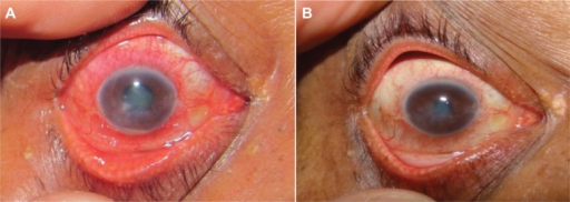 Resistant viral corneal ulcer associated with hypopyon before (A) and after (B) argon laser adjunctive therapy.