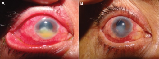 Resistant fungal corneal ulcer associated with hypopyon before (A) and after (B) argon laser adjunctive therapy.