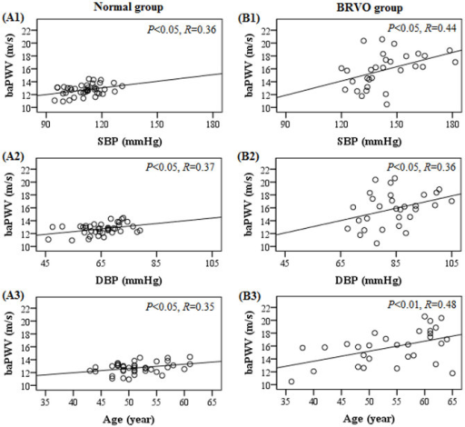 Brachial-ankle pulse wave velocity (baPWV) as a function of systolic blood pressure (SBP), diastolic blood pressure (DBP) and age for the normal (A1–A3) and BRVO groups (B1–B3).The regression lines with P values and R values are also shown.