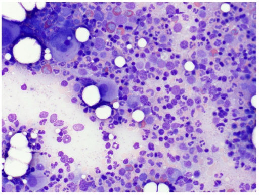 Bone marrow aspirate showing a hypercellular marrow with trilineage hematopoiesis and increased myeloid cell series (M : E ratio 4 : 1) with eosinophilia and plasmacytosis (approximately 15 to 20%).