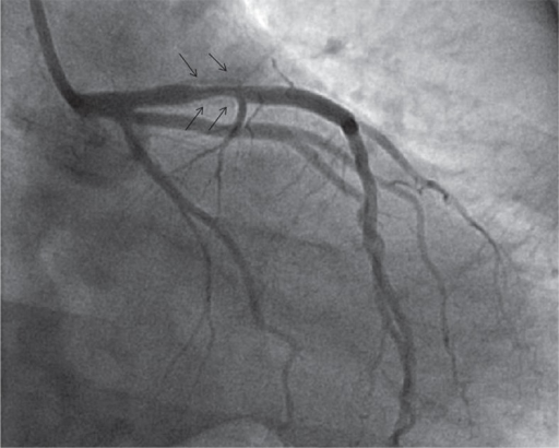 Right anterior oblique caudal view of left coronary arteries. This image shows proximal in-stent stenosis of the left anterior descending artery. Arrows indicate the edge of previous stents