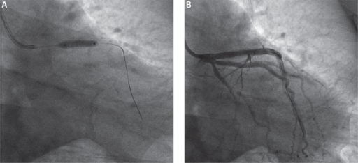 BVS deployment (A) and final image (B). Note that the final image of the proximal left anterior descending artery resembles the image taken after cutting balloon dilatation