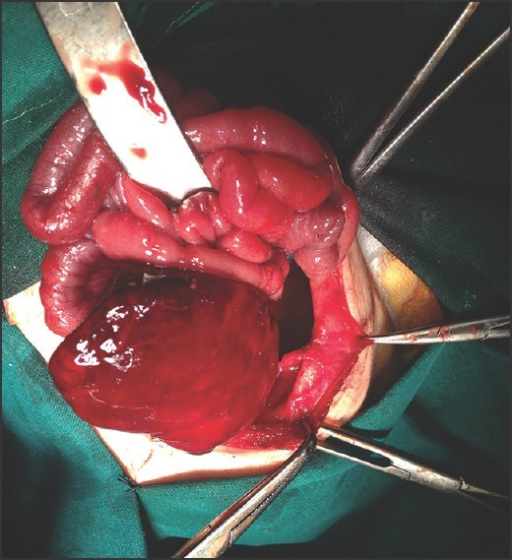 Right congenital diaphragmatic hernia with reduced contents (liver and intestine)