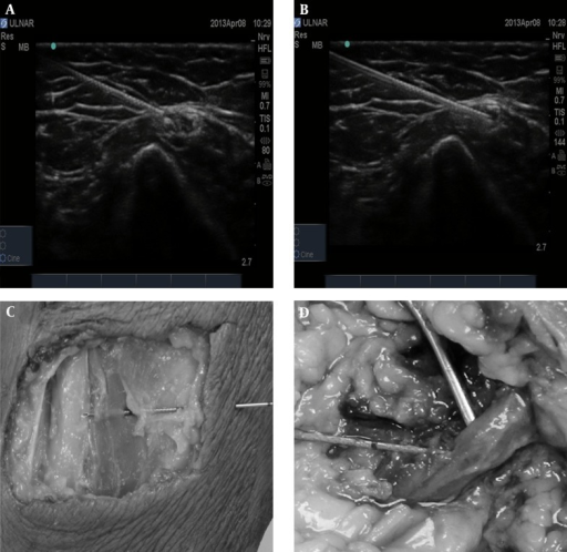 Illustrating the ultrasonography-guided needle placement (2A and 2B, perineural and intraneural injections, respectively) and the corresponding dissections to confirm the need position (2C and 2D, perineural and intraneural injections, respectively)