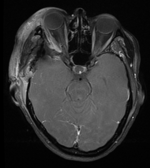 Postoperative MRI following right orbitozygomatic craniotomy for tumor resectionAxial T1-weighted MRI with contrast showing near total resection.