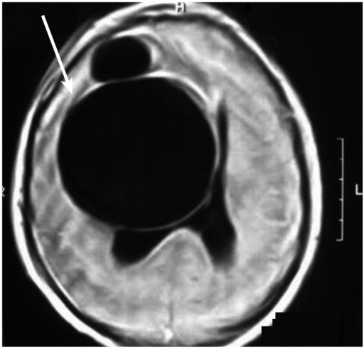 Brain axial T1-weighted image showing a large, hypointense, lobulated, and cystic lesion in the right frontal lobe, causing a mass effect.