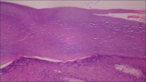 Keratinous mass overlying the epidermis (×40)