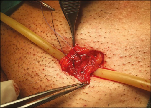 Microsurgical varicocelectomy. Veins after isolation an