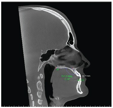 - Sagittal slice with the individual's head positioned so as thehorizontal reference line was superimposed to the palatal plane formeasurement of maxillary right central incisor inclination beforeorthodontic decompensation.