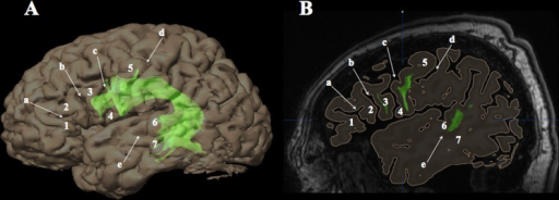 Labeling of cortical terminations according to anatomical landmarks.Cortical terminations of white matter fascicles (e.g. left arcuate fascicle; green) were labeled according to gyri and sulci provided by 3D surface renderings (A) generated from high-resolution T1-weighted magnetic resonance images (B; sagittal section running through the left frontal operculum). a = horizontal ramus of the Sylvian fissure; b = ascending ramus of the Sylvian fissure; c = precentral sulcus; d = central sulcus; e = superior temporal sulcus; 1 = pars orbitalis of the inferior frontal gyrus (Brodmann area [BA] 47); 2 = pars triangularis (BA 45); 3 = pars opercularis (BA 44); 4 = ventral premotor cortex (BA 6); 5 = precentral gyrus (BA 4/6); 6 = superior temporal gyrus (BA 22); 7 = middle temporal gyrus (BA 21).