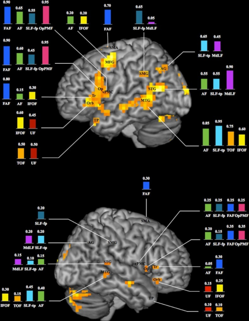 Schematic illustration of the language connectome.Occurrence (expressed in percentage; n = 20 healthy subjects) of connections between white matter fascicles and BOLD clusters within known essential language areas of the left (top) and right (bottom) hemispheres (3D renderings of fMRI group analysis; activations observed at individual level within the temporal pole, inferior parietal lobule and ventral premotor cortex of the right hemisphere are not shown; see text for details). AF = arcuate fascicle; AG = angular gyrus; FAF = frontal aslant fascicle; IFOF = inferior fronto-occipital fascicle; MdLF = middle longitudinal fascicle; MFG = middle frontal gyrus; MTG = middle temporal gyrus; Op = pars opercularis; OpPMF = operculopremotor fascicle; Orb = pars orbitalis; SLF-fp = frontoparietal segment of the superior longitudinal fascicle; SLF-tp = temporoparietal segment of the superior longitudinal fascicle; SMA = supplementary motor area; SMG = supramarginal gyrus; STG = superior temporal gyrus; TOF = temporo-occipital fascicle; TP = temporal pole; Tr = pars triangularis; UF = uncinate fascicle; vPMC = ventral premotor cortex.