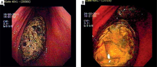 A, B. Endoscopic view of the bezoar