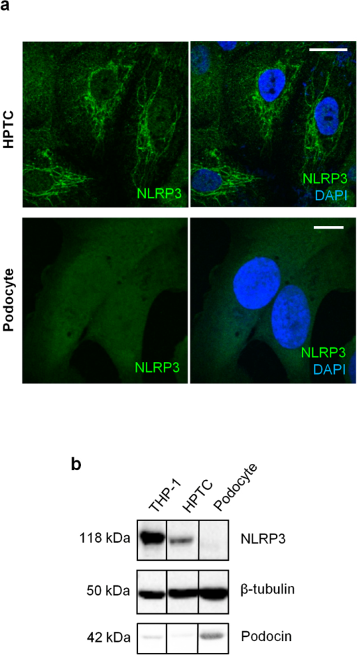 Subcellular localization of NLRP3 in HPTC and human podocyte cell cultures.(a) Indirect immunofluorescence in HPTC and immortalized, differentiated human podocytes probing for NLRP3 (green) in the presence of DAPI (blue) for merged images. Scale bar represent 20 μm (b) Immunoblotting for NLRP3, podocin and tubulin in lysates prepared from THP-1 cells (positive control), HPTC, or immortalized human podocytes. Representative of experiments performed at least 3 independent times.