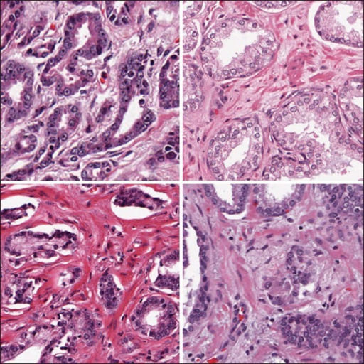 Diversity of H and E stained images illustrated using four prostate cancer samples with Gleason Grade 3. The first two samples show range of epithelial brightness, and the last two show the range of stromal brightness