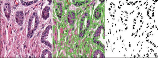 An example H and E stained tissue image (left), its super-pixel boundaries (center, green), and detected dark sub-objects (right, black)