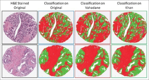 Two examples of cores whose pixels have been classified into epithelium (green) and stroma (red) based on original images as well as normalized images using Vahadane and Khan methods
