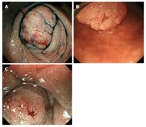 Esophagogastroduodenoscopic views of the tumor in the stomach. A: The protruded tumor occupied and existed beyond the pyloric ring, the whole tumor could not fit in one field of view; B: Image observed by inverting the endoscope in the duodenal bulb; C: Magnifying endoscopy with narrow-band imaging showed sturucture irregularities compared with the normal surrounding mucosa.