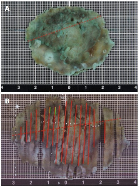 A macroscopic view of the specimen resected by endoscopic submucosal dissection. A: Macroscopic appearance of the specimen soaked for almost 24 h in formalin after endoscopic submucosal dissection. The red dotted line indicates where there was a pyloric ring; B: Cut out of the resected specimen. The solid red line indicates adenocarcinoma; green line indicates neuroendocrine tumor; red dotted line indicates the location of the pylorus.