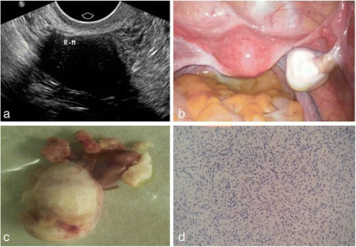 A 53-year-old woman with a pelvic mass discovered by routing physical examination. a On ultrasound examination, a 28 mm*22 mm*26 mm well-circumscribed hypoechoic mass was observed in the right ovary, with posterior echo attenuation. b On laparoscopy surgery, right ovarian was hard and enlarged, the surface smooth, having a good mobility; in the pelvic, a small number of pale yellow ascites were observed. c Pathologically, right ovarian was enlarged, with tough textures and grayish white surfaces. d Pathological findings confirmed thecofibroma in right ovarian
