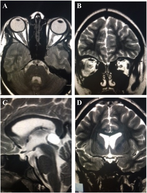 Brain Magnetic Resonance Imaging MRI TSE sequences of the patient showing mild inversion of the optic papilla on the optic disk on both sides, with prominent subaracnoid space around the optic nerves (a-b), and a partially empty sella turcica (c-d)