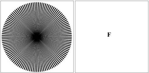 MacKay Ray FigureNotice the chrysanthemum effect while viewing the image. Fixate for ten seconds on the center of the figure, then transfer gaze to the blank fixation (F) and notice the streaming circular effects in the blank area, roughly orthogonal to the orientation of the rays.