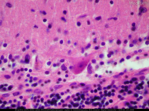 Pathology of rabies infection is typically defined by encephalitis and myelitis. Perivascular infiltration with lymphocytes, polymorphonuclear leukocytes, and plasma cells can occur throughout the entire CNS. Rabies infection frequently causes cytoplasmic eosinophilic inclusion bodies (Negri bodies) in neuronal cells, especially pyramidal cells of the hippocampus and Purkinje cells of the cerebellum. These inclusions have been identified as areas of active viral replication by the identification of rabies viral antigen.
