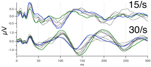Day-to-day differences in audA-waves at two different repetition-rates in subject Ap. Monaural stimulation, right ear. The recordings were first taken over 15 days, and then 3 months later were taken over 42 days. The 15 S/s data shows 12 overlapped traces/days, and the 30 S/s data shows 9 traces/days. All traces are dotted, with the exception of the two traces having a maximum or minimum at 100 ms (to show how the same trace differs at other latencies). Note that despite the day-to-day variation, the polarities are opposite at about 100 ms, about 140 ms, about 200 ms, and about 250 ms.