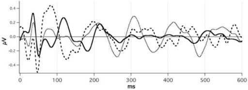 Demonstration that A-waves are not immediately generated by the first pair in the run. Abscissa, ms; ordinate V. Solid trace: The response to a single Dau-chirp presented at 15 S/s using a q- sequence. Dotted trace: The response to the second of a pair of Dau-chirps with the timing between the pair at 14 ms (the period of 70 S/s). The timing from start-of-pair to start-of-pair was 15 S/s, using the same q-sequence. See text for the method of extracting and shifting this waveform. Dashed trace: The response to the same Dau-chirps when they are presented in a jittered q-sequence, mean of 70 S/s. NOTE: The dotted trace is mid-way between the solid and dashed traces within the first 120 ms, i.e., the response to the second stimulus of the pair does not equal the response to continuous stimulation.