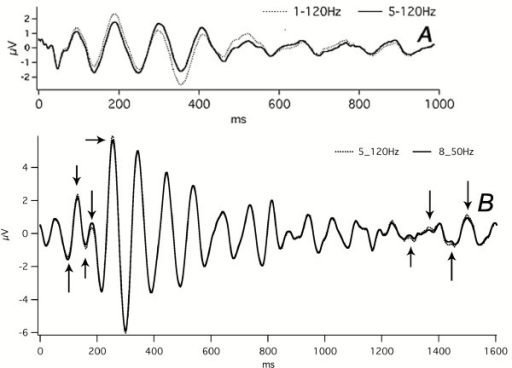 The effect of filtering on the overall shape of audA-waves and visA-waves.A: Subject = Mn. Monaural right ear stimulation at 40 S/s. Abscissa, ms; ordinate V. The sequence-length was 3 sec, of which only the first 1500 ms are shown. Run time = 100 min (1 hr, 40 min).Dotted lines = Data passband filtered 1–120 Hz.Solid lines = The same data filtered 5–120 Hz. (Note that this is the only recording shown in this paper that shows data with the highpass filter down to 1 Hz.) The effect of the filter (solid line) is to create a monotonic descent of the peak heights, which appears as a damped sinusoid, but that the brain's response (dotted line) actually has an increased positive peak just before 200 ms, and an increased negative valley at about 375 ms. The waves after about 475 ms have a magnitude within the noise level of the rest of the sweep (1000–3000 ms – not shown). Note also the filtered waveform (solid line) is more regular than the 1–120 Hz data (dotted line).B: Subject = Cg. Flash stimuli, left visual hemifield, 30 S/s. Same data as Fig. 12.Dotted Lines = Data passband filtered 5–120 Hz.Solid Line = The same data as the Dotted Line, but passband filtered 8–50 Hz. The differences due to the narrower passband are small – some are indicated by arrows.