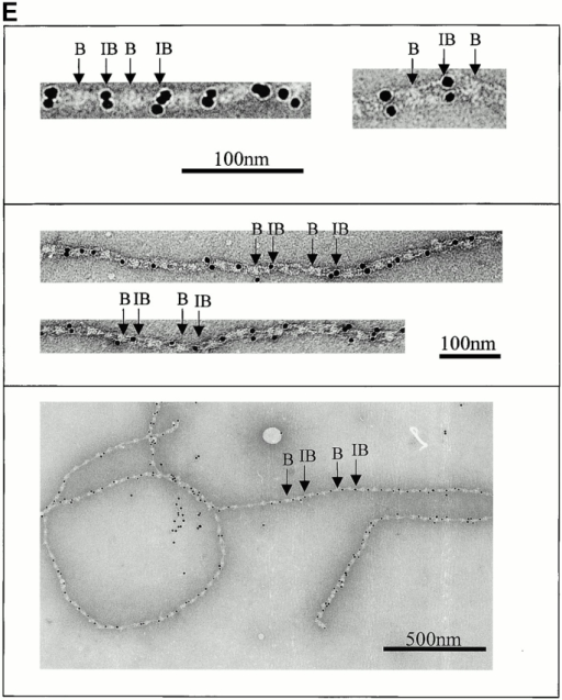 Automated electron tomography images of negatively stained untensioned bovine zonular microfibrils. (A) A zero degree tilt image of a negatively stained microfibril. (B) XY slices at six different Z heights through a reconstruction showing a region of the same microfibril. Stain-penetrable space between the arms is seen in all Z slices and is therefore a 3-D feature. (C) Three Z slices shown in black and white using IMOD (Kremer et al.. 1996) compared with the same region of microfibril 3-D volume rendered (green) using AVS Express (Advanced Visual Systems Inc.). (D) Schematic diagram of a microfibril repeating unit with the mean measurements taken from a representative data set. For standard deviations, see Table . (E) Colloidal gold binding to microfibrils, showing periodic double labeling at the ends of the interbead arms, and intermittent labeling at the bead. Beads and interbeads are labeled B and IB, respectively.