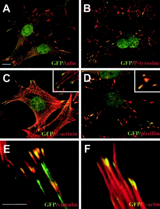 Localization of filamin-Bvar-1(ΔH1) in focal contacts. Confocal microscopy of GD25-β1A cells showing the green fluorescence of filamin-Bvar-1(ΔH1) compared with red talin (A), phosphotyrosine (B), α-actinin (C), paxillin (D), vinculin (E), and F-actin (F). Insets in C and D are at higher magnifications. Filamin-Bvar-1(ΔH1) is found at the end of actin stress fibers and is colocalized (yellow) with talin, phosphotyrosine, paxillin, and vinculin in focal contacts. Bars: (A–D) 10 μm; (E and F) 5 μm.