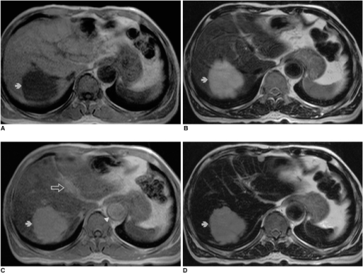 Liver hemangioma in a 67-year-old woman.A. Precontrast T1-weighted in-phase gradient-echo image depicts a round hypointense lesion (arrow) in the right lobe of the liver.B. Precontrast T2-weighted turbo spin-echo image shows a hyperintense lesion (arrow) in the liver.C. Ferumoxides-enhanced T1-weighted in-phase gradient-echo image obtained during the distributional phase demonstrates positive enhancement of the lesion (arrow), similar to that of the intrahepatic portal vein (open arrow). Note positive enhancement of the abdominal aorta (arrowhead).D. Ferumoxides-enhanced T2-weighted turbo-spin echo image shows reduced intensity of the lesion (arrow) compared to precontrast image (A).