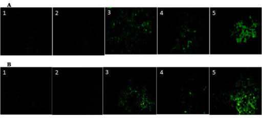 Immunofluoresent expression: After 4th week of post-transplantation, the liver was perfused with 4% paraformaldehyde solution and stored in 10% buffered formalin solution. After dewaxing and dehydrating, the sections were incubated overnight with anti-mouse Alb (A) and CK18 (B) antibodies and the expression of these proteins was viewed by fluorescent microscopy using secondary antibody tagged with FITC. Both Alb and CK18 were highly expressed in MSC and MSC+HGF-CNP treated groups but not in control, HSC and HSC+HGF-CNP treated groups. It displayed the differentiation of MSC and augmentation of differentiation by HGF-CNP (Control magnification 100 ×).