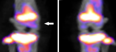 Multi pinhole SPECT scan using 99mTc-MDP to visualize bone turnover in MIA-induced OA rat model. At the left, the OA side vs. the contralateral control side at the right. There was a higher signal in the subchondral bone (white arrow) already 2 days after OA induction. The other large signal is from growth plate