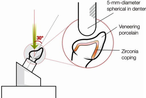 Schematic view of the fracture strength determination procedure with CAD/CAM zirconia crowns. The direction of the load applied was 30°, and the loading points were consistently maintained by repositioning the metal die.