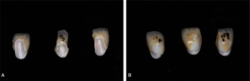 Photographs after fracture strength tests. A: Lava CAD/CAM crowns showed crown core fracture pattern, B: Digident CAD/CAM crowns showed interfacial fracture pattern of core and veneering porcelain.