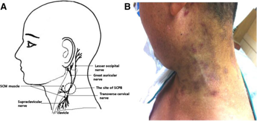 Stellate Ganglion Block For Effective Treatment Of Neur Open I