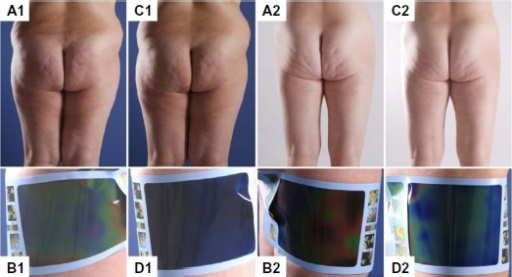 Treatment of two patients (1, 2) with cellulite using radial extracorporeal shock wave therapy.Notes: (A1 and A2) Clinical picture at baseline. (B1 and B2) Contact thermography at baseline. (C1 and C2) Clinical picture 4 weeks after the last treatment (follow-up). (D1 and D2) Contact thermography at follow-up. (A1–D1) A 29-year-old female (body mass index 32.9, weight 84.3 kg, height 160 cm). Radial extracorporeal shock wave therapy performed on the left side improved the cellulite from grade 3 at baseline to grade 1–2 at follow-up (ie, δ-2 was 1.5). Despite this objectively substantial treatment success, the patient's satisfaction was only 5 on a scale ranging from 0 (maximum dissatisfaction) to 10 (maximum satisfaction). (A2–D2) A 51-year-old female (body mass index 20.8; weight 53.3 kg; height 160 cm). Radial extracorporeal shock wave therapy performed on the right side improved the cellulite from grade 2–3 at baseline to grade 1–1.5 at follow-up (ie, δ-2 was 1.25). This patient was very satisfied with the treatment (9 on a scale ranging from 0 to 10). Patient consent was obtained to publish the above images.