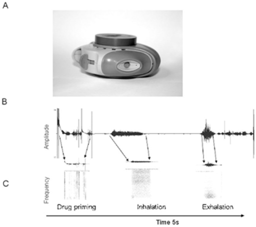 The audio recording device, attached to the Diskus inhaler is shown in (A).In (B) the amplitude of the audio associated with an inhaler being used is shown, in (C) the corresponding audio is shown in the frequency domain. From analysis of the audio the clear differences in the features of each of the steps is shown. After fully opening the device, which starts electronic recording, the first critical step is the lever movement to blister the drug. This step is characterized by a short burst of energy lasting approximately 20–30 ms with a high frequency content (∼2 kHz) preceded by a short burst of lower frequency noise (∼1 kHz). Prior studies have shown that there is a difference in spectral components in the frequency domain between inhalations and exhalations an exhalation has a sharp increase in amplitude that tapers off with time and the power of exhalation decreases exponentially from 2 kHz to 500 Hz while the spectral power for inhalations are higher and they have a low increase in amplitude compared to that of exhalations.18