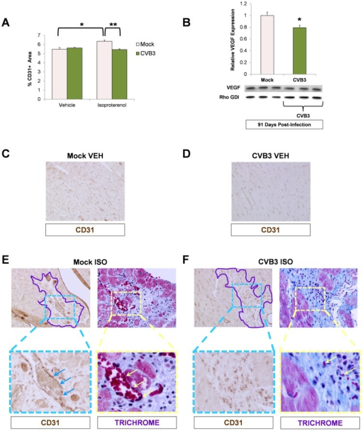 Impaired vascular remodeling following beta-adrenergic stimulation-induced cardiac hypertrophy in adult mice infected with CVB3 at an early age.Three day-old mice were infected with eGFP-CVB3 (105 pfu IP) or mock-infected. After 13 weeks, a 10 day treatment with ISO was used to induce physiologic hypertrophy in infected or mock-infected mice. (A) Vascular changes were evaluated in the adult heart by immunostaining for CD31 (endothelial cell marker). A significant increase in CD31 staining was seen in mock-infected mice following ISO treatment (*p<0.05; two-way ANOVA). A Newman Keuls post hoc comparison test of the group×treatment interaction revealed that CD31 staining was significantly higher in the mock ISO group {6.36 (.13)} compared to the mock vehicle group {5.49 (.18)}. In contrast, a significant decrease in CD31 staining was observed in infected mice compared to mock-infected mice following ISO treatment (**p<0.01; two-way ANOVA). (B) A decrease in VEGF protein expression (western blot analysis) was observed in ISO-treated CVB3-infected mice (*p<0.05; Student's T-test). (C), (D) Heart sections from vehicle only controls and immunostained for CD31 showed no differences between mock-infected and CVB3-infected mice. (E) CD31 staining and vascularization near sites of fibrosis (Masson trichrome staining) was observed following ISO treatment in mock-infected mice. Regions of fibrosis were outlined in light purple. CD31 staining (light blue arrows) associated with vascularization (light yellow arrows) was observed at higher magnification. (F) In contrast, less CD31 staining and limited vascularization was seen following ISO treatment in CVB3-infected mice.