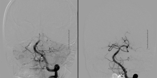 Patient No. 15. Basilar apex is occluded with absence of opacification of bilateral posterior cerebral arteries. First two attempts at direct aspiration were unsuccessful. After the third attempt at direct aspiration, the basilar occlusion was recanalized with establishment of thrombolysis in cerebral infarction score 2b flow.