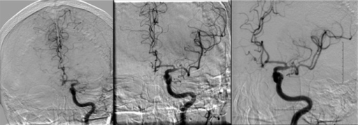 Patient No 6. Left middle cerebral artery is occluded in the proximal segment with thrombolysis in cerebral infarction (TICI) score 0 flow. After the first attempt at combined stent retriever thrombectomy and aspiration, the LM1 was recanalized, with TICI score 2b flow subsequently established.