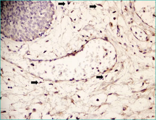 Light microscopic appearance of connexin (+) interstitial cells in the lamina propria of the urinary bladder of a non–diabetic patient (x400). Arrows indicate some of the interstitial cells located around vessels.