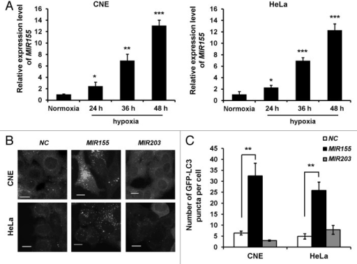 Figure 1. Hypoxia-induced MIR155 promotes autophagosome accumulation. (A) Hypoxia induces MIR155 expression. CNE or HeLa cells were exposed to 1% oxygen for 24, 36 and 48 h. Cells were collected for qRT-PCR to quantify the expression of MIR155. (mean ± s.d. of independent experiments, n = 4, *P < 0.05, **P < 0.01, ***P < 0.001, Student 2-tailed t test). (B) MIR155 promotes GFP-LC3 translocation. CNE or HeLa cells stably expressing GFP-LC3 were transfected with negative control (NC), MIR155 or MIR203. Cells were fixed 48 h post transfection. Representative images are shown. Scale bar: 10 μm. (C) Quantitative analysis of GFP-LC3 puncta in (B). At least 200 cells were examined in each experimental group. Data shown are means ± s.d. of four independent experiments. **P < 0.01, Wilcoxon rank sum test.