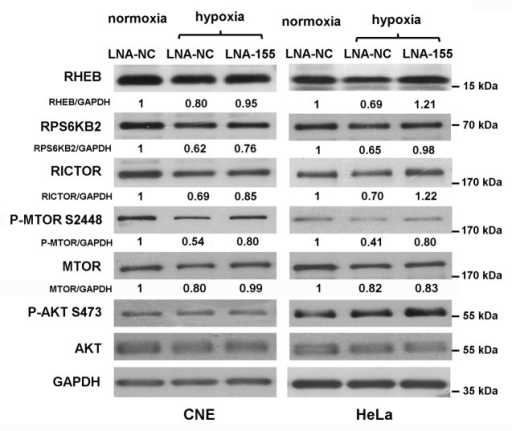 Figure 6. Blockage of endogenous MIR155 led to an increase in RHEB, RICTOR, and RPS6KB2 protein levels. Western blot analysis of RHEB, RICTOR, RPS6KB2, MTOR, phospho-MTOR (Ser2448), and GAPDH in CNE or HeLa cells transfected with LNA-NC or LNA-155. Protein ratios were calculated following ImageJ densitometric analysis. (3 independent experiments gave similar results).