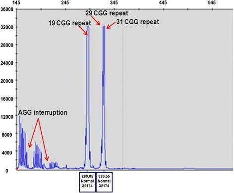 Repeat-Primed PCR analysis  Repeat-primed PCR analysis | Open-i