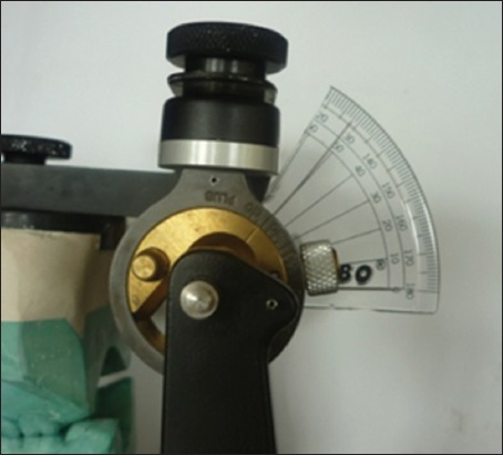Modification of Hanau articulator using template protractor.