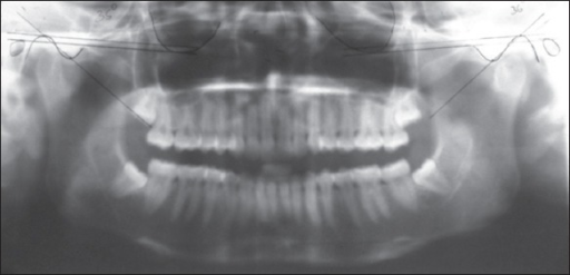 Tracing of condylar guidance angle on panoramic radiograph in dentate patients.