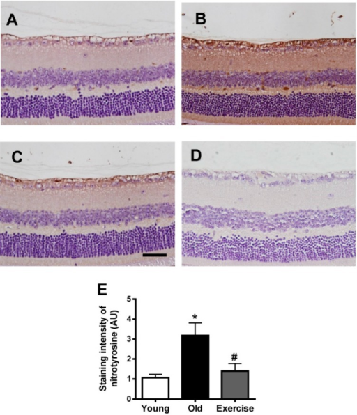Retinal nitrotyrosine formation. Immunohistochemical staining for nitrotyrosine, a nitro-oxidative stress maker, was performed on the retinas from the young control (A); old control (B); exercise (C) groups; and (D) negative control. The primary antibody was omitted. Scale bar = 50 μm. Nitrotyrosine was barely detectable in the young control mice, but the old control mice displayed enhanced nitrotyrosine immunoreactivity in retinal tissues. Exercise significantly inhibited nitrotyrosine formation; and (E) the values in the bar graphs represent the means ± SE, n = 8. *p < 0.05 vs. the young control group; # p < 0.05 vs. the old control group.
